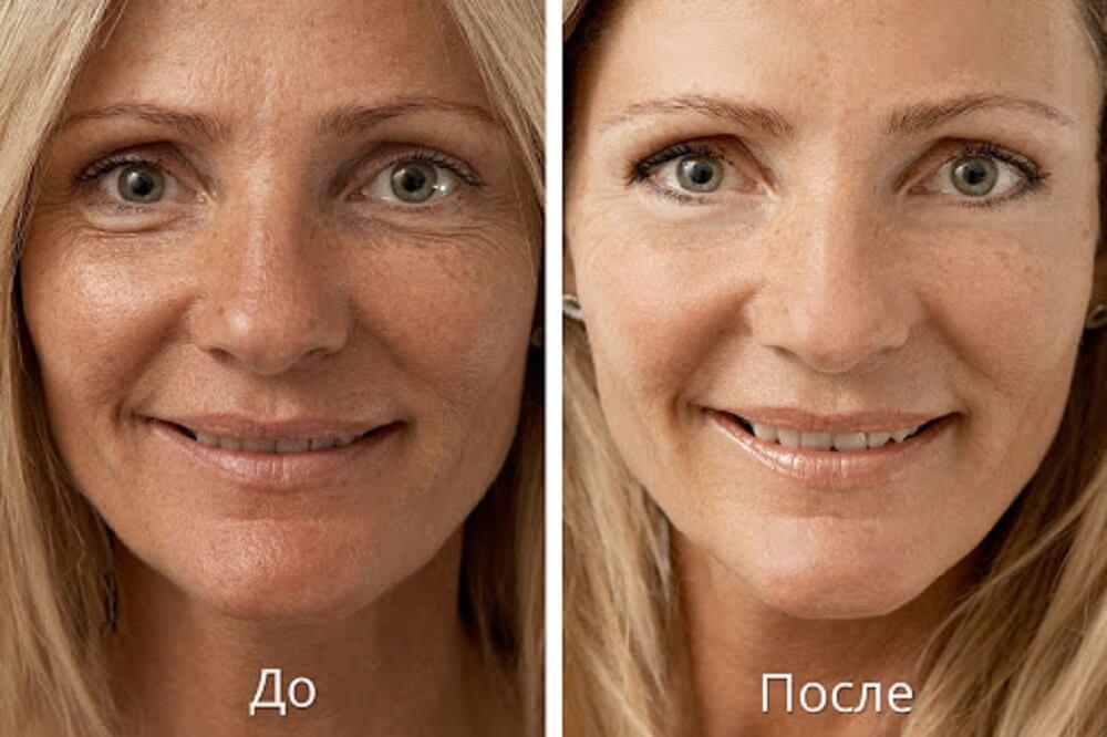 Эффект до и после процедуры