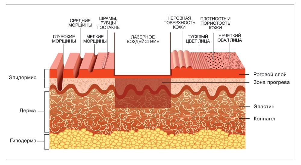 Как действует лазер на угревую сыпь