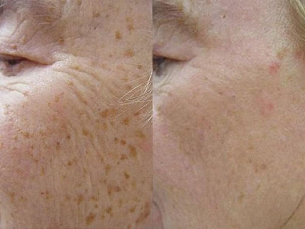 Как выглядит кожа до и после процедуры