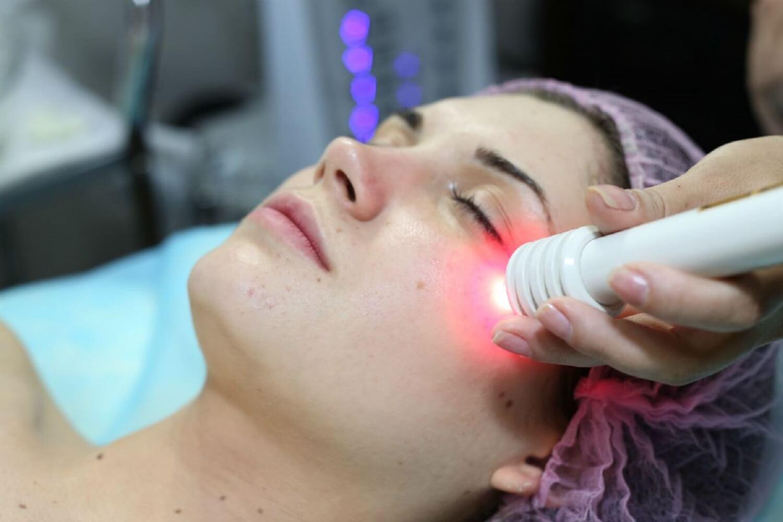 Лазерная биоревитализация лица