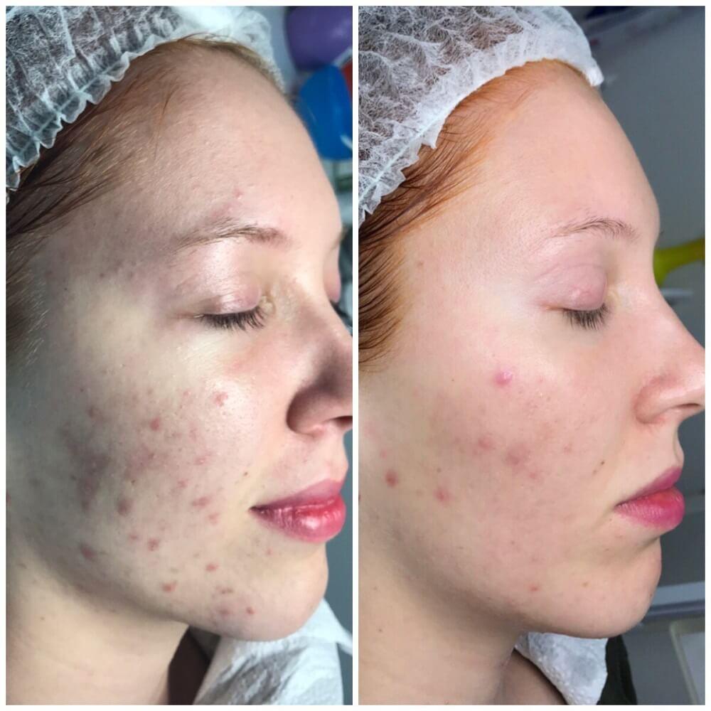 Лазерное FT-лечение: до и после