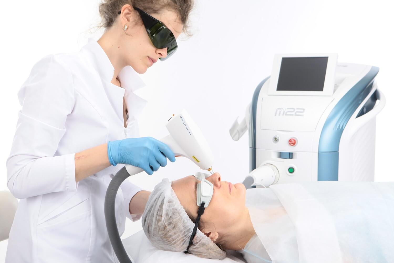 Удаление лазером сосудов на лице