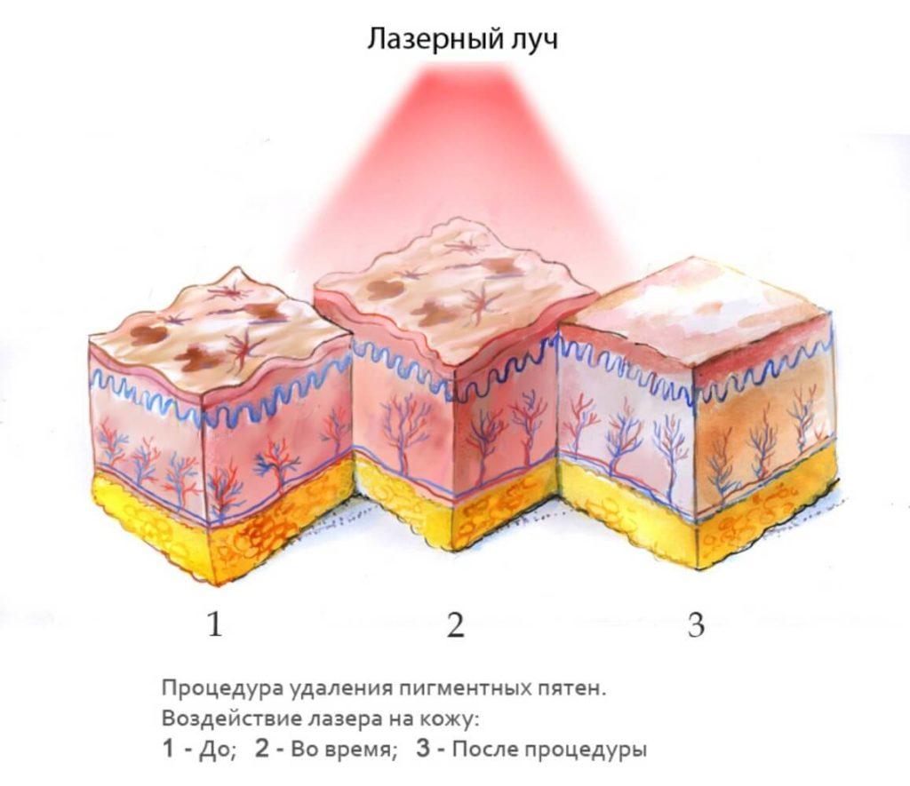 воздействие лазера на пигментные пятна