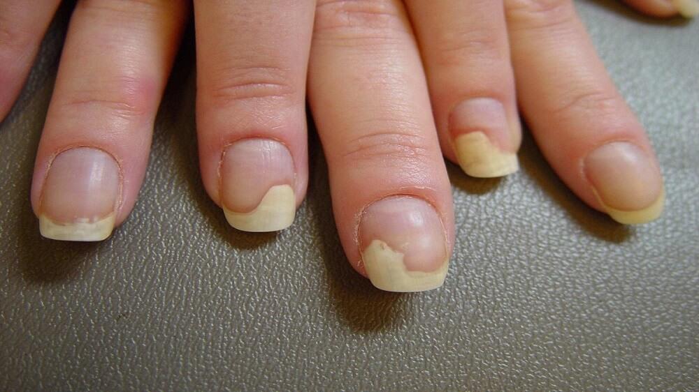 Как лечится грибок ногтей