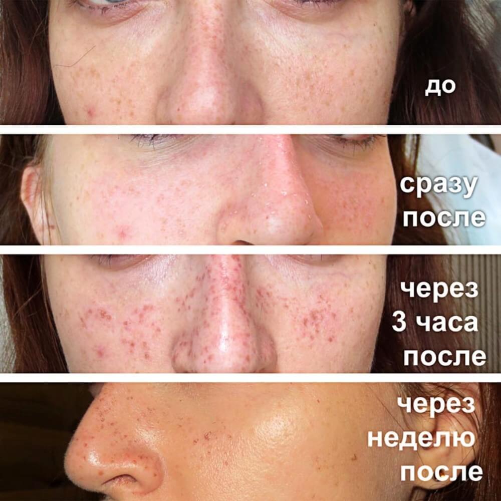 кожа после удаления пигментации