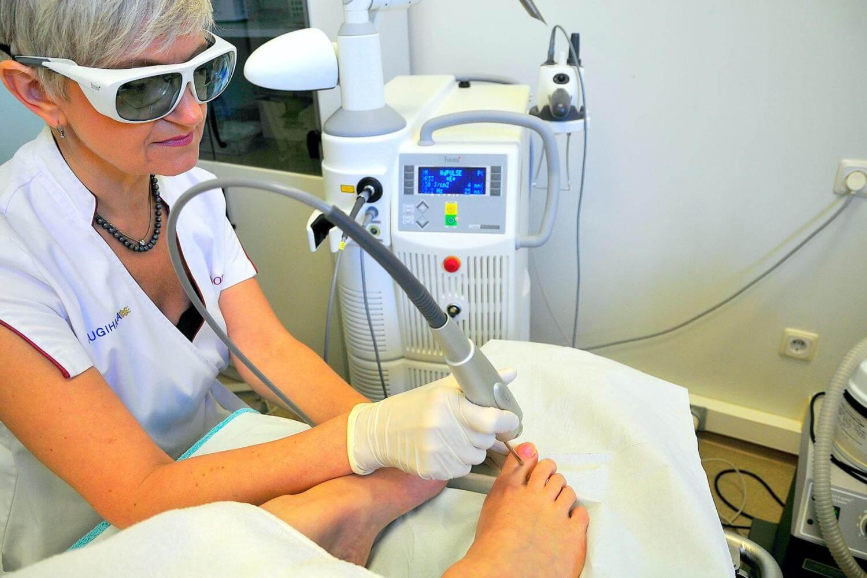 лазерное лечение онихомикоза