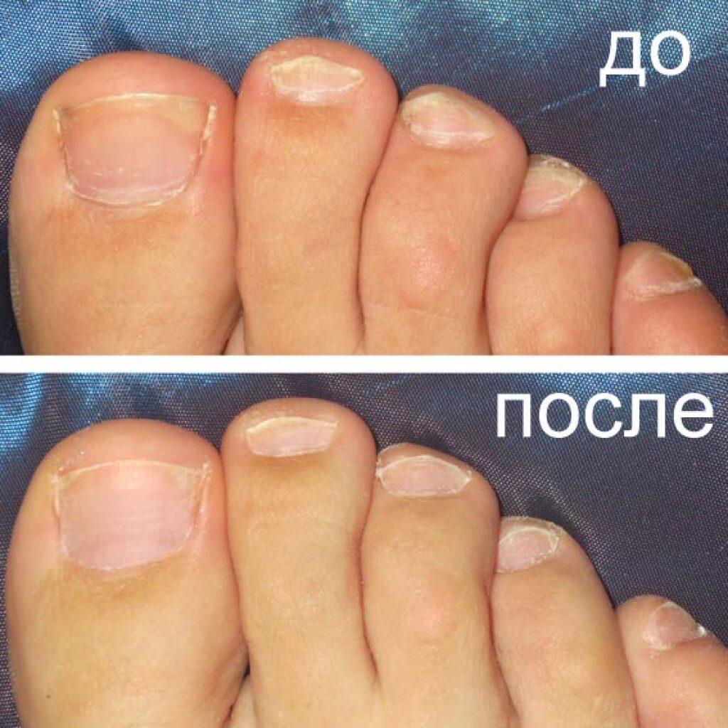 онихомикоз до и после лечения