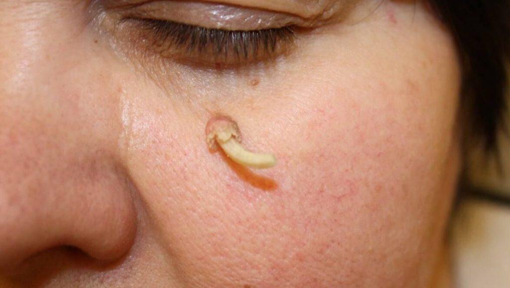 Описание заболевания кожный рог