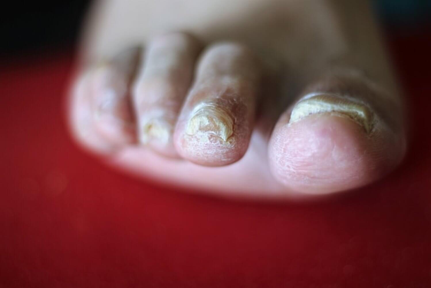 кандидоз ногтей ног