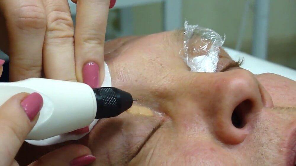 Процедура лазерного удаления ксантелазмы