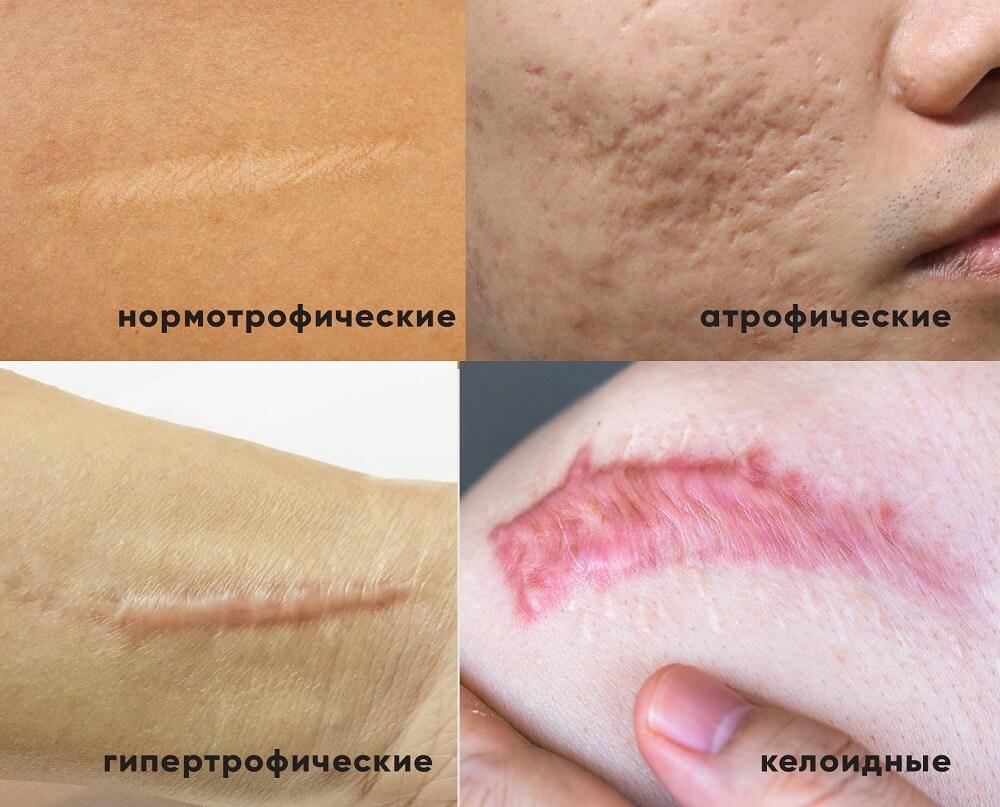 Виды рубцов и шрамов