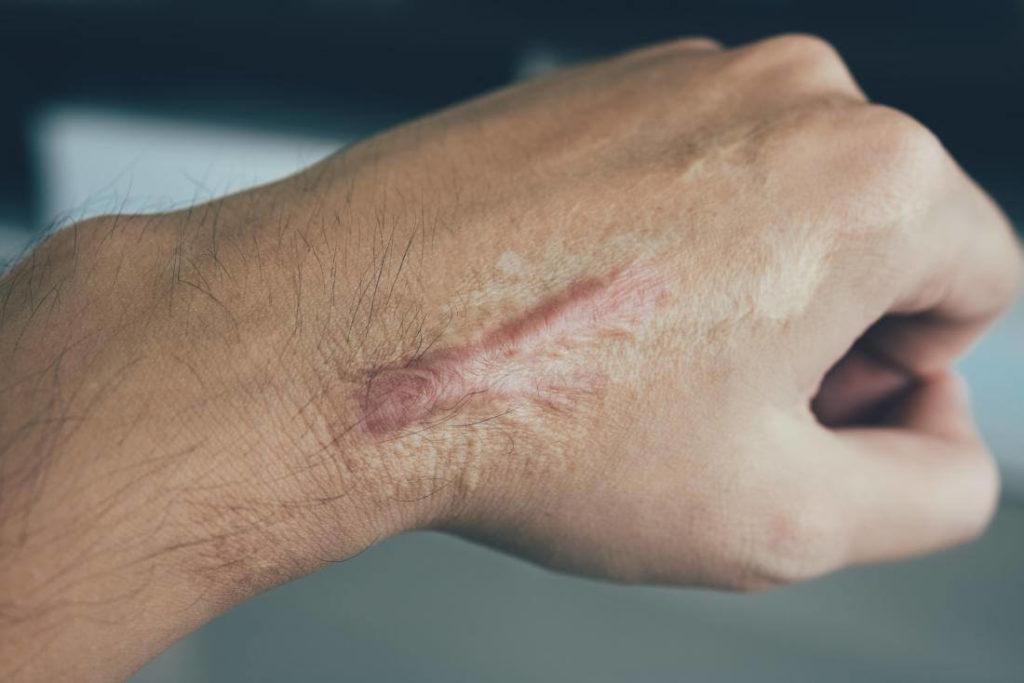 Лазерное лечение послеожоговых рубцов