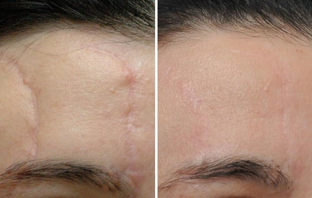 Результат лазерного лечения: до и после
