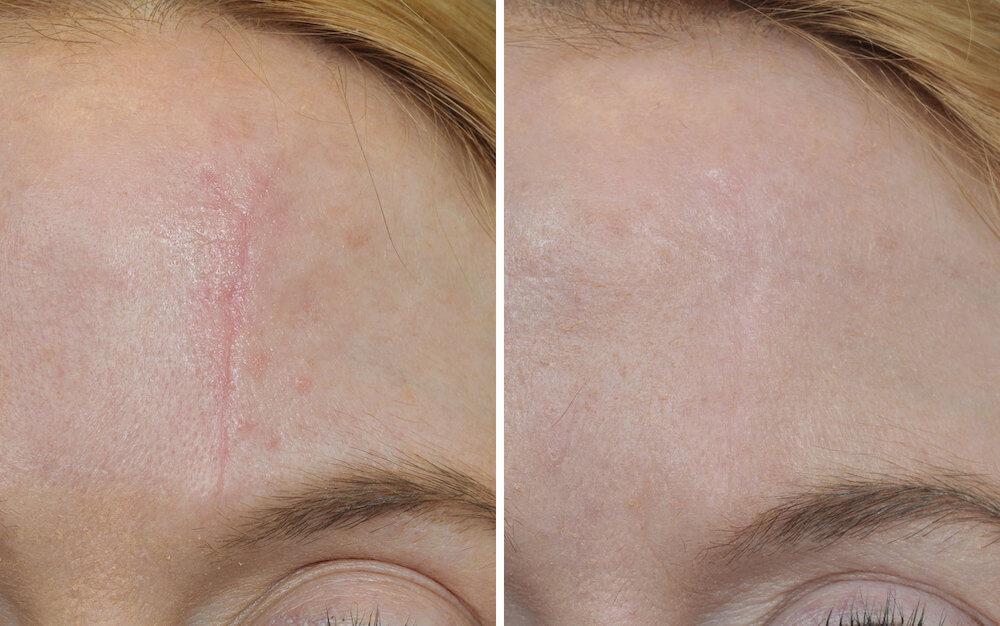 Шрамы на лице – до и после