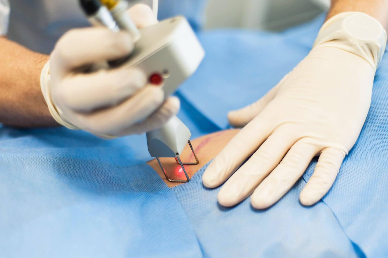 Удаление шрамов на теле