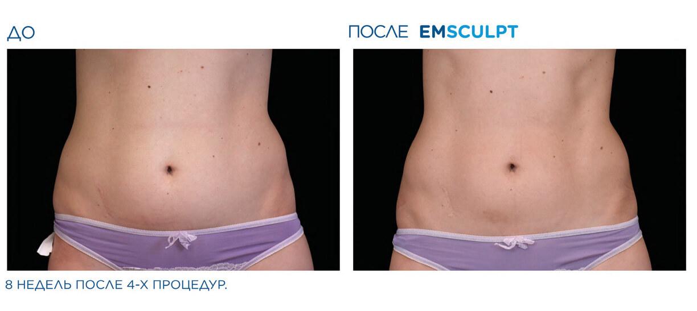 До и после EMSculpt