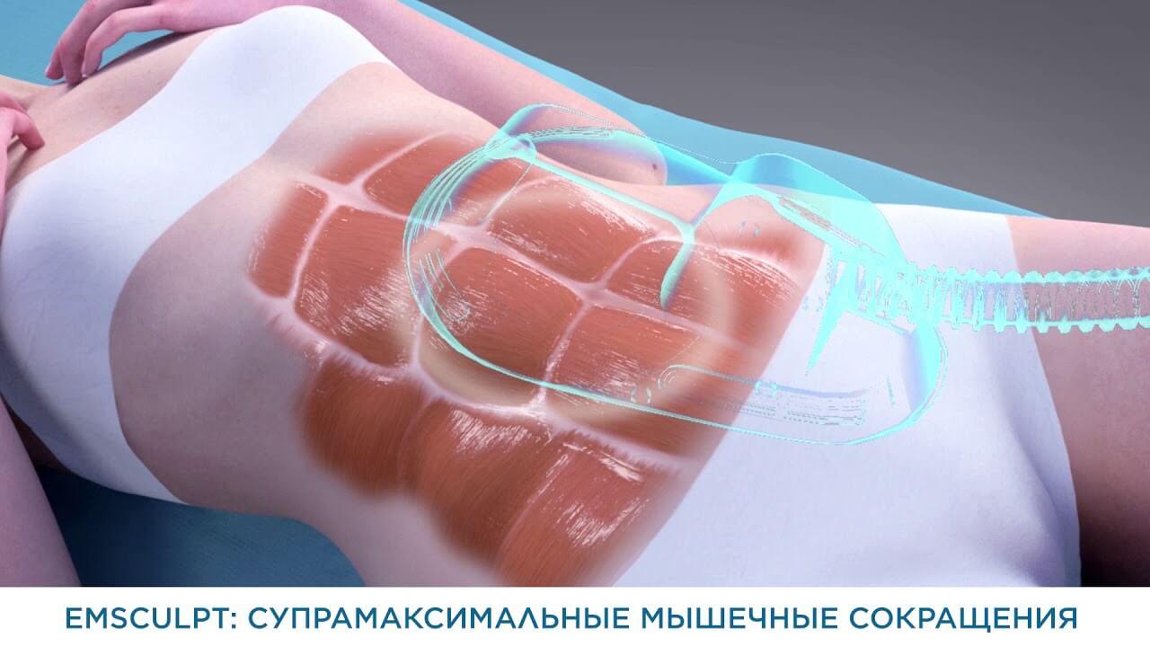 Процедура применения EMSculpt