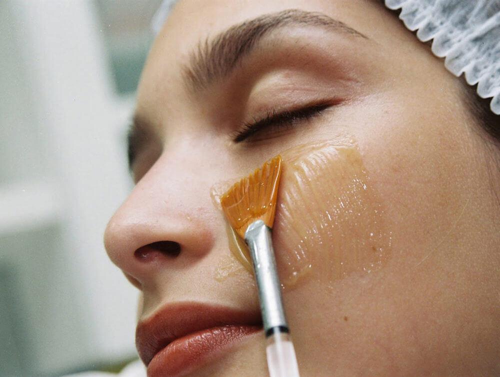 Удаление старых шрамов на лице