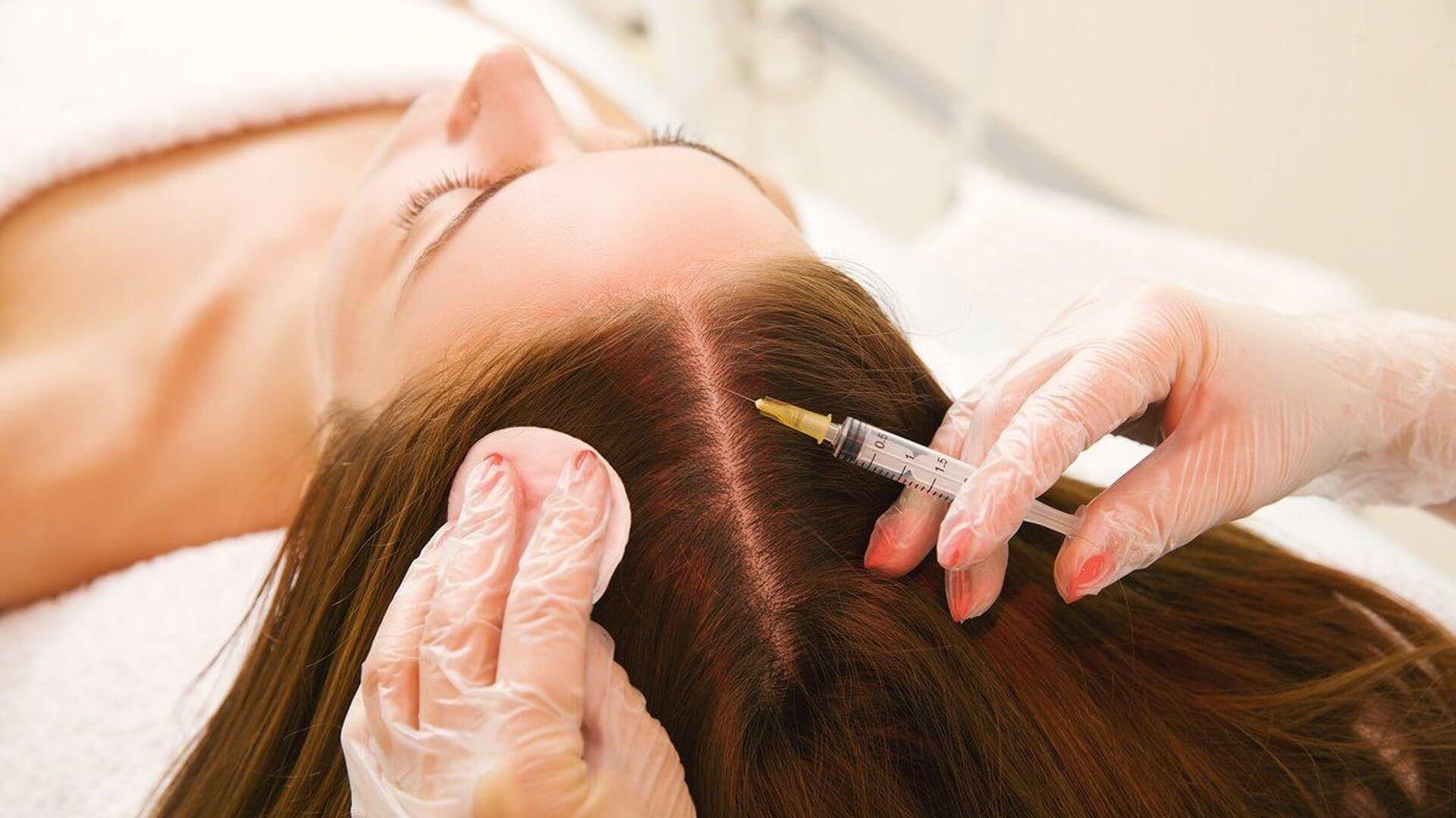 Мезотерапия для кожи головы