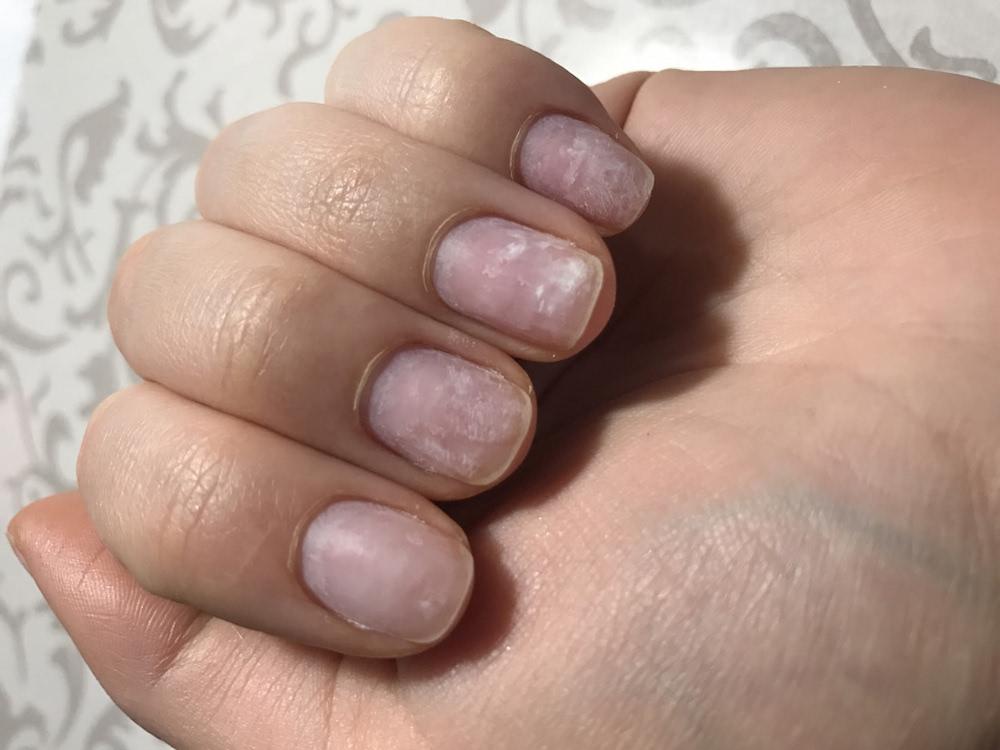 Испортились ногти