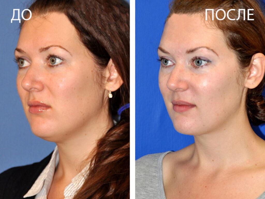 Липолитики улучшают состояние кожи и контура лица