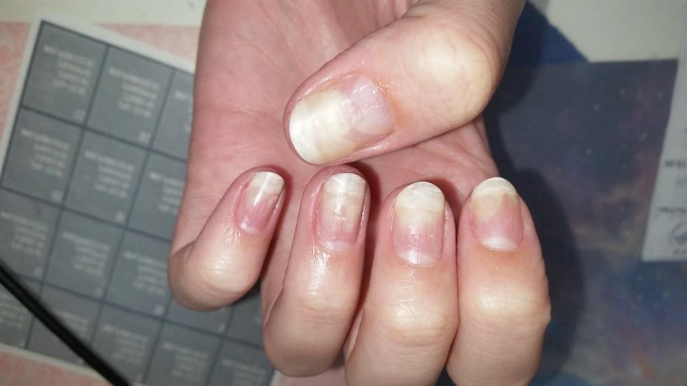 Некрасивые ногти после гель-лака