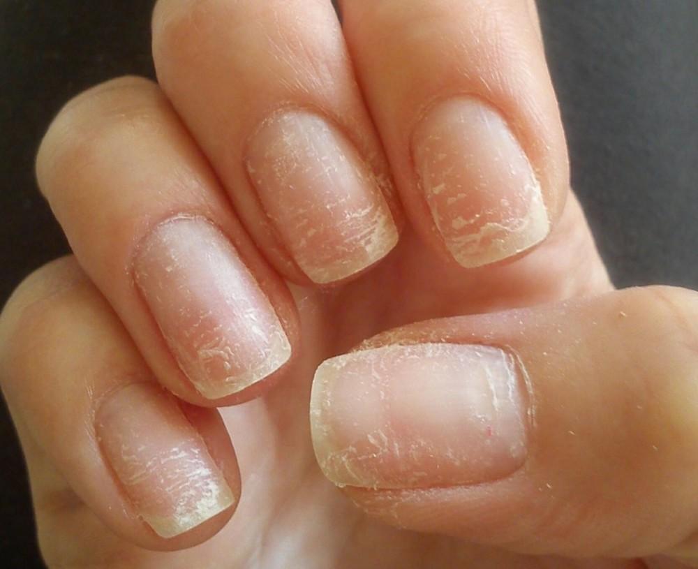 Ногти после гель-лака испортились