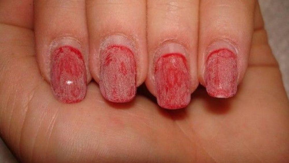 Ногти после гель-лака