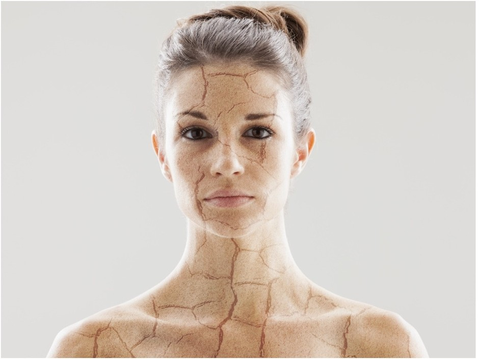 Сухой воздух обезвоживает кожу