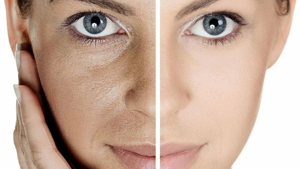 Влияние продуктов на состояние кожи