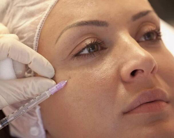 Лучшие препараты для мезотерапии вокруг глаз