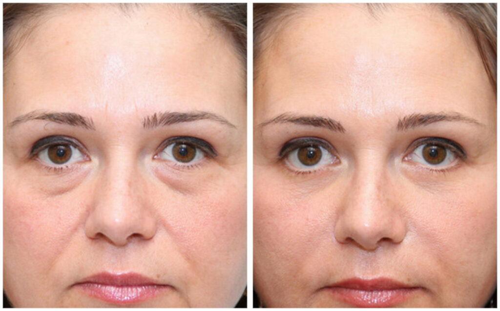Мезотерапия от мешков под глазами