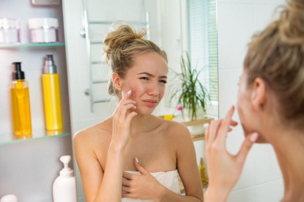 Ошибки в уходе за проблемной кожей